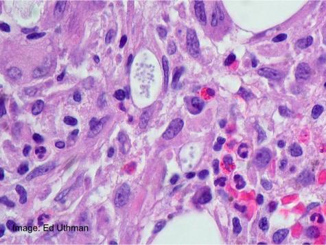 Fungal infection in bone marrow, in a patient with rheumatoid arthritis.